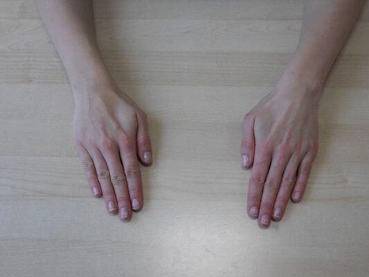 hand und finger bungen wie halte ich meine h nde fit ergotherapie meyer. Black Bedroom Furniture Sets. Home Design Ideas