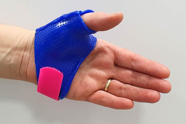 Hand mit Daumenfunktionsschiene