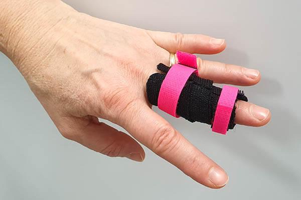 Hand mit Fingerlagerungsschiene